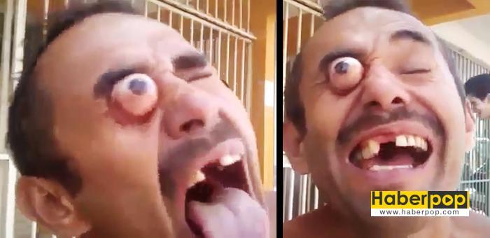 Gözleri-yerinden-fırlayan-adam,-görenleri-korkuttu-video-izle-haberi