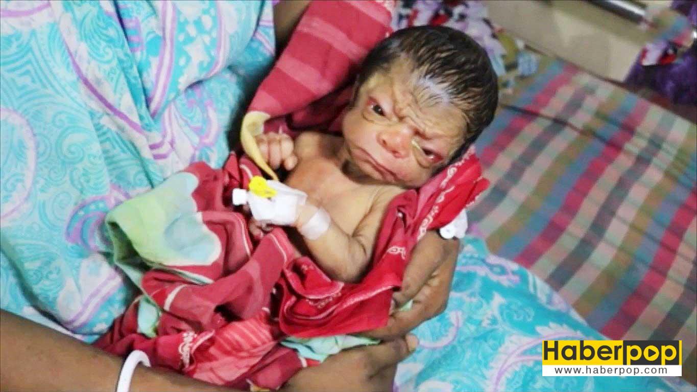 yasli-bir-insan-gibi-dogan-bebek-videosu-progeri-progeria
