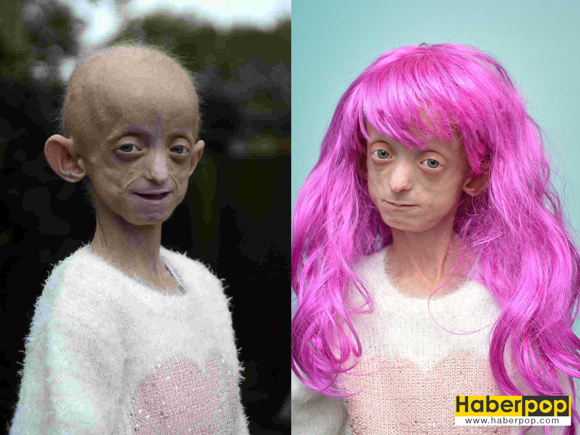 progeria-progeri-erken-yaslanma-hastaligi-nedir