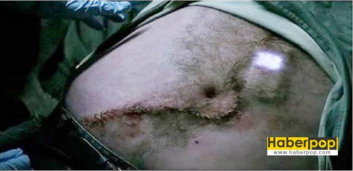 yuttugu-cep-telefonu-midesinden-ameliyatla-cikardilar-video